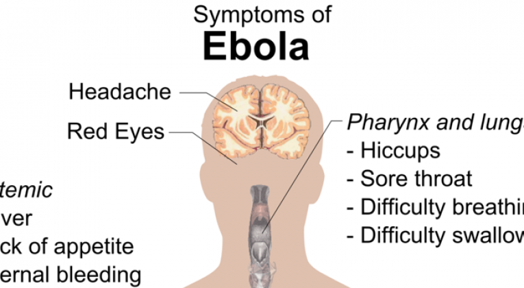 Ebola virus disease epidemic